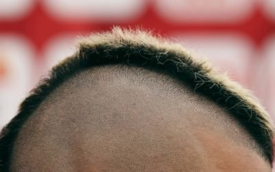 """A """"Cure"""" for Baldness Could Be Around the Corner – The Atlantic"""